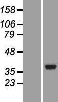 NBL1-13823 - NT5C3 Lysate