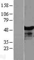 NBL1-13825 - NT5DC1 Lysate