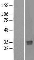 NBL1-13829 - NTAN1 Lysate