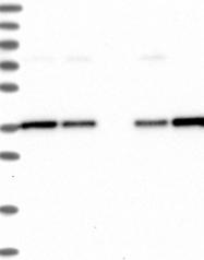 NBP1-92204 - NUBP1