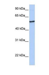 NBP1-55000 - NUDCD1 / CML66