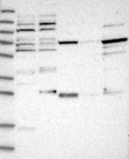 NBP1-85539 - NUDCD1 / CML66