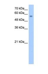 NBP1-52974 - NUDT12