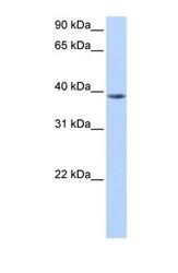 NBP1-54929 - NUDT13