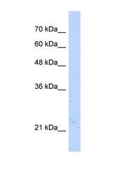 NBP1-55432 - NUDT16L1 / SDOS