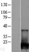 NBL1-13859 - NUDT2 Lysate