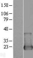 NBL1-13860 - NUDT2 Lysate