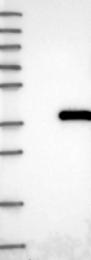 NBP1-82754 - NUDT22