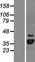NBL1-13862 - NUDT22 Lysate