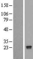 NBL1-13863 - NUDT4 Lysate