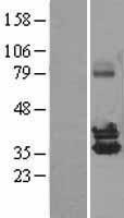 NBL1-13865 - NUDT6 Lysate