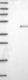 NBP1-82715 - NUDT9 / NUDT10