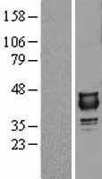 NBL1-13867 - NUDT9 Lysate