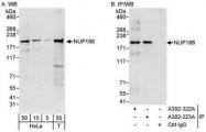 NBP1-28748 - NUP188