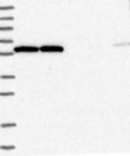 NBP1-85899 - NUP54