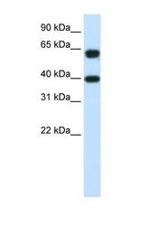 NBP1-57276 - NXF3