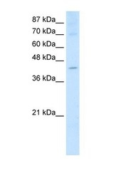 NBP1-57260 - NXF5