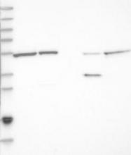 NBP1-82289 - Nucleoredoxin