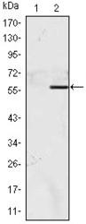 NBP1-51681 - NACC1 / BTBD14B