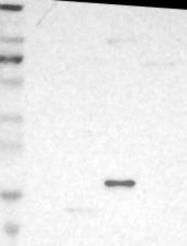 NBP1-81234 - NDFIP1