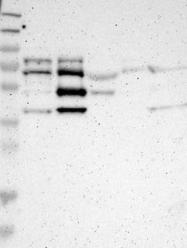 NBP1-91211 - CD112 / Nectin 2