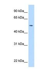 NBP1-69387 - Sialidase 1