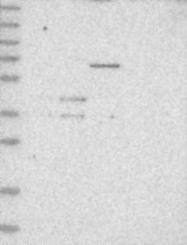 NBP1-87755 - Sialidase 1