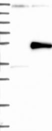 NBP1-87756 - Sialidase 1
