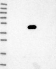 NBP1-87418 - Neuregulin 3