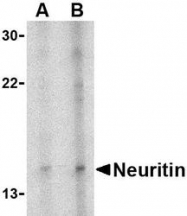 NBP1-77282 - Neuritin