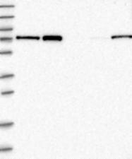 NBP1-87901 - Neurochondrin