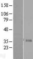 NBL1-13602 - Neurogenin 1 Lysate