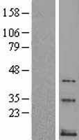 NBL1-16669 - Neurokinin B Lysate
