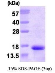 NBP1-30196 - Neurokinin B / TAC3