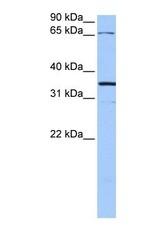 NBP1-59255 - Neuroligin Y