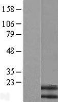NBL1-13679 - Neuromedin B Lysate