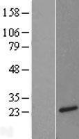 NBL1-13841 - Neurotensin Lysate