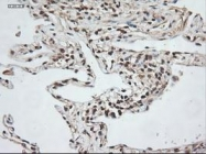 NBP1-47892 - Neurotrophin 3 / NTF3
