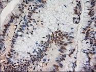 NBP1-47897 - Neurotrophin 4 / NTF4