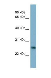 NBP1-59313 - Neurotrophin 4 / NTF4