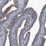 NBP1-87534 - Neuronal acetylcholine receptor subunit alpha-3