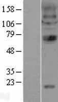 NBL1-09181 - Nicotinic Acetylcholine Receptor alpha 4 Lysate