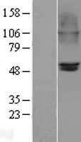 NBL1-09187 - Nicotinic Acetylcholine Receptor beta 2 Lysate