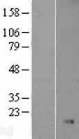 NBL1-13662 - Nkx3.1 Lysate