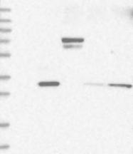 NBP1-82553 - NKX6-1
