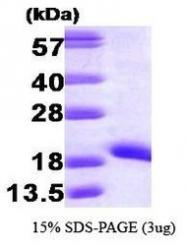 NBP1-30195 - NDP kinase A