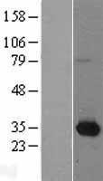 NBL1-13691 - Nmnat1 Lysate