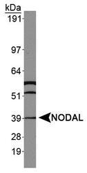 NBP1-71686 - NODAL