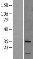 NBL1-13886 - Nogo B receptor Lysate