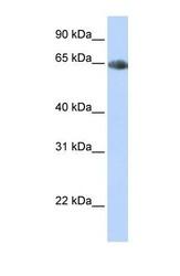 NBP1-60120 - Norepinephrine Transporter